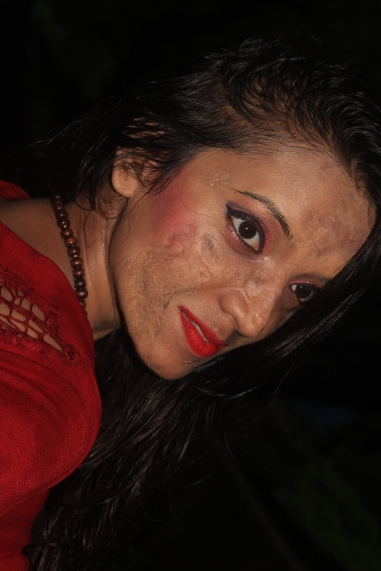 Mitali Sonawane: A perfect example of 'True Inspiration' to all the girls with so called 'FLAWS'